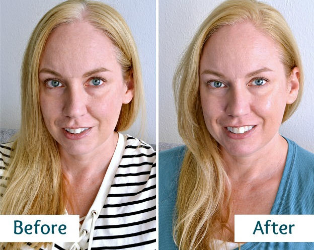 Before and After Photos of Skin